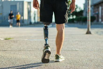 What you need to know about lower limb prostheses and factors that drive up costs